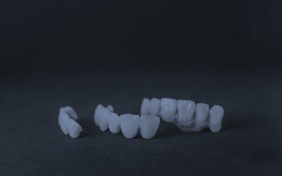Puente o implante dental, ¿Qué es mejor?
